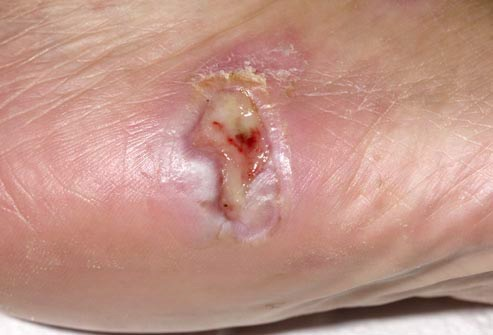 Foot Ulcer