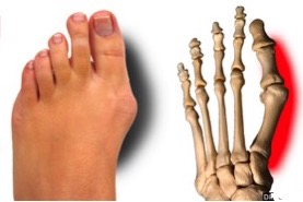 Hallux Valgus and Bunion Deformity