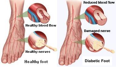Diabetic and Normal Foot